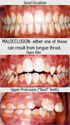 Correct Tongue Thrust
